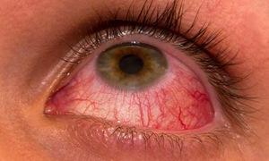 Lưu ý dấu hiệu bệnh lý viêm màng bồ đào ở mắt