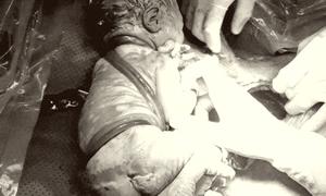 Trẻ sơ sinh chào đời với dây rốn quấn 6 vòng quanh người