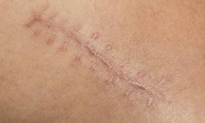 Khám, tư vấn miễn phí sẹo do chấn thương, di chứng bỏng tại Hà Nội