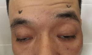 Phẫu thuật điều trị sụp mi - cải thiện chức năng thị giác