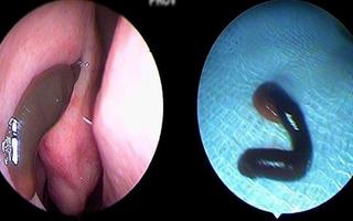 Thường xuyên bị chảy máu mũi, vào viện phát hiện vắt ký sinh trong mũi