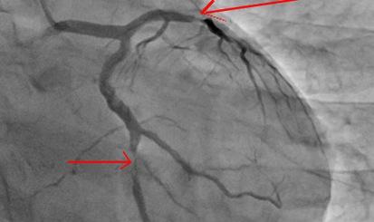 Cảnh giác với biến chứng mạch vành trên người bệnh đái tháo đường