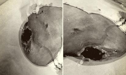 Bệnh nhân cao tuổi bị biến chứng rò bạch huyết phức tạp
