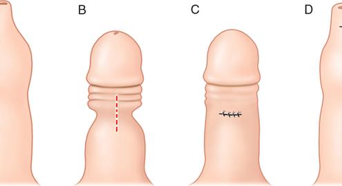 Hẹp bao quy đầu và những nguy hại nếu không được điều trị sớm