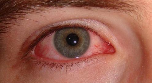 Cần làm gì để tránh lây nhiễm bệnh đau mắt đỏ?