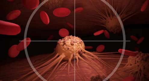 Phát hiện tế bào ung thư