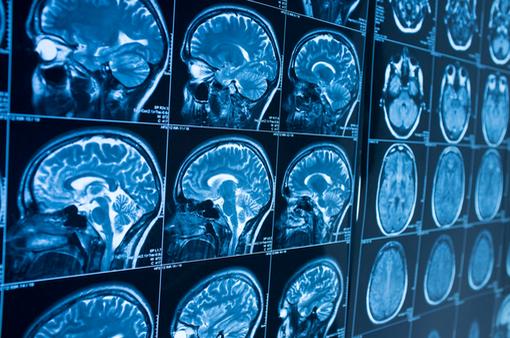 Trí tuệ nhân tạo dự đoán bệnh Alzheimer sớm trước 10 năm