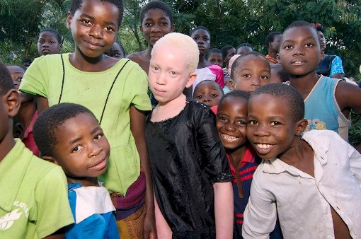 Người mắc bạch tạng ở Malawi có nguy cơ tuyệt chủng