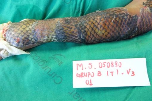 Thử nghiệm trị bỏng bằng da cá rô phi