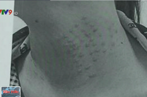 Tiêm chất làm trắng da, bệnh nhân dị ứng nặng