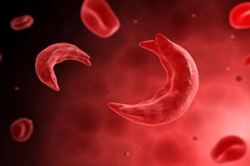 Cảnh giác bệnh thiếu máu hồng cầu hình liềm