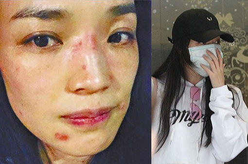 Thư Kỳ bị dị ứng da mặt nghiêm trọng