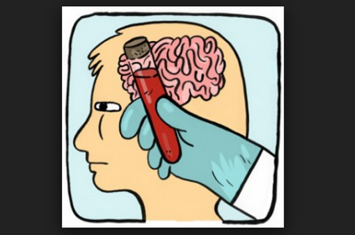 Thử máu phát hiện chấn thương sọ não
