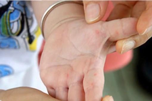 Cách điều trị bệnh tay chân miệng hiệu quả
