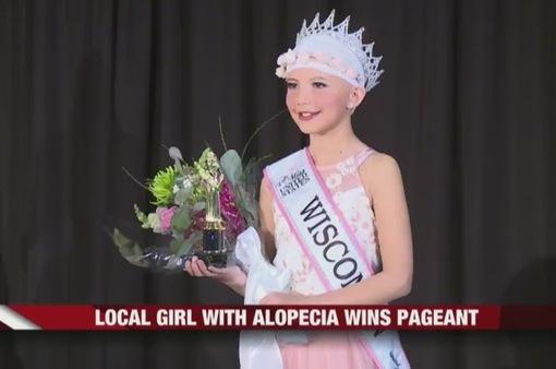 Mỹ: Cô bé mắc chứng rụng tóc tự tin giành chiến thắng cuộc thi sắc đẹp nhí