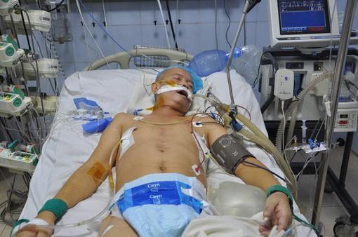 Tắc mạch phổi, tính mạng của người bố nghèo nguy kịch