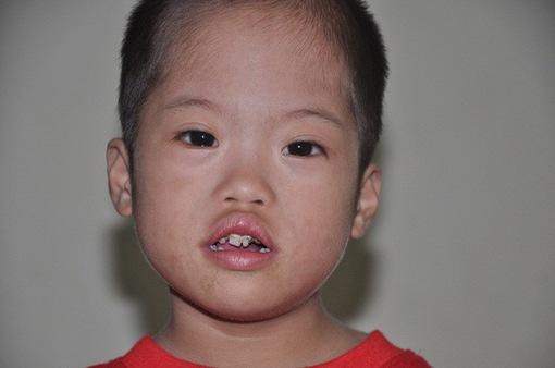 Không vay nổi 20 triệu đồng, tính mạng bé 3 tuổi nguy kịch vì bệnh tim