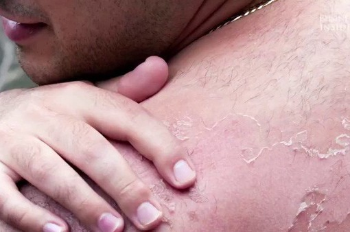 Lời khuyên để phục hồi da bị cháy nắng hiệu quả