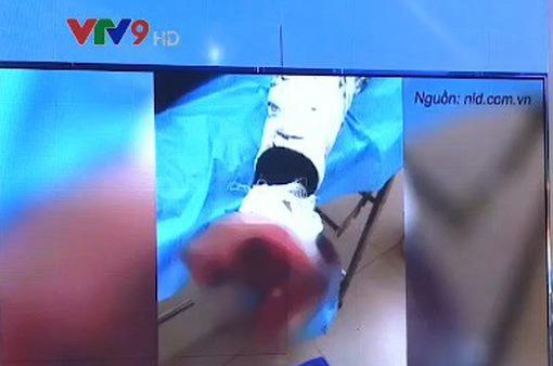 Vừa sạc vừa dùng điện thoại, thiếu niên 17 tuổi bị nát bàn tay