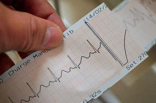 Nhịp tim như thế nào thì nguy hiểm?