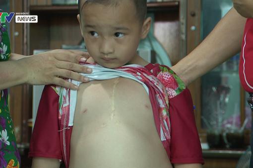 Hỗ trợ phẫu thuật tim miễn phí cho bệnh nhi nghèo 6 tuổi