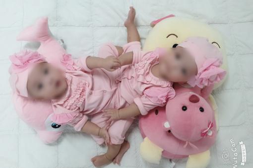 Sẵn sàng phẫu thuật tách cặp song sinh dính nhau cực kỳ hiếm gặp ở Việt Nam