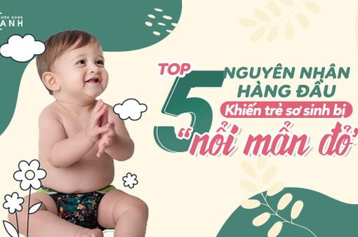 Top 5 nguyên nhân hàng đầu khiến trẻ sơ sinh bị nổi mẩn đỏ