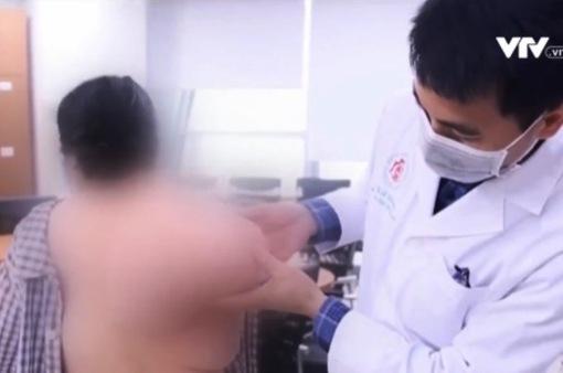 Tách bỏ thành công khối u nặng 5kg vùng bả vai