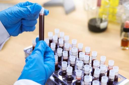 Người nhóm máu A liệu có khả năng cao mắc COVID-19?