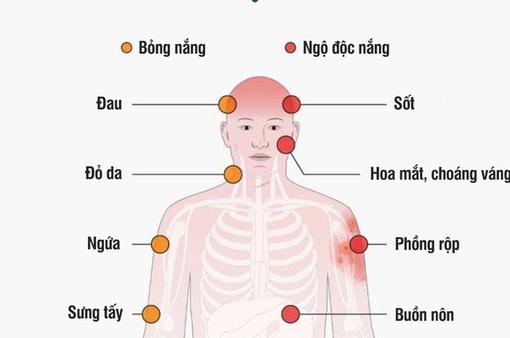 [INFOGRAPHIC] Bỏng nắng - những triệu chứng và cách xử lý
