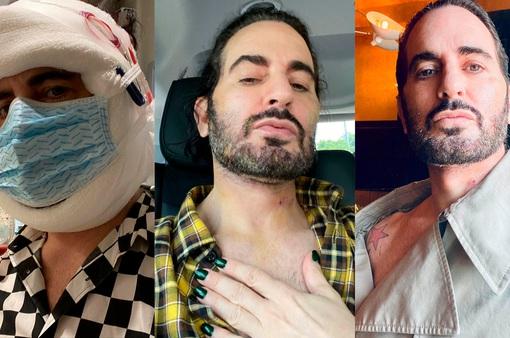 Marc Jacobs thừa nhận phẫu thuật thẩm mỹ