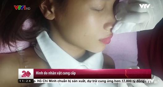 TP Hồ Chí Minh: Bệnh nhân khởi kiện vì hỏng mắt sau tiêm filler mũi