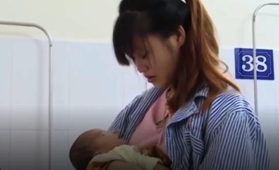 Bé hơn 20 ngày tuổi bị hỏng giác mạc do nhỏ sữa mẹ