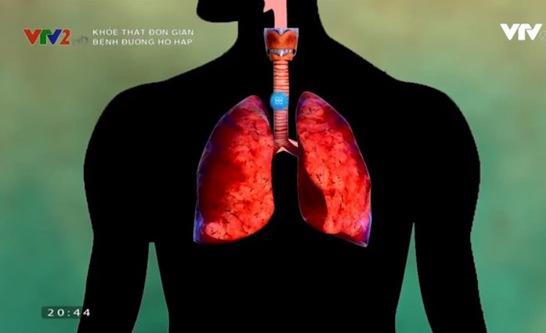 Coi chừng biến chứng nguy hiểm của viêm phổi khi trời lạnh