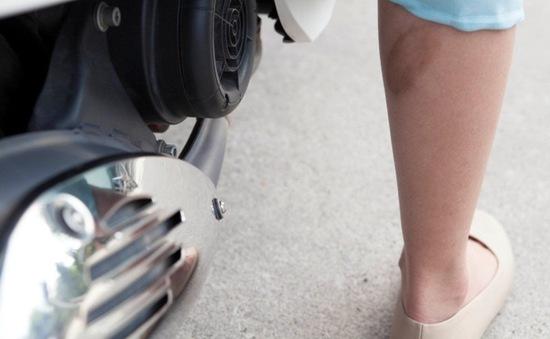 7 bước xử trí khi bị bỏng bô xe máy