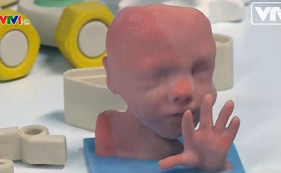 Bào thai 3D – Món quà cho những người sắp làm mẹ