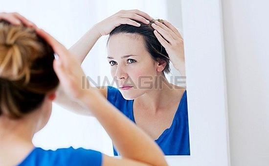 Bí quyết chống rụng tóc với sữa dừa