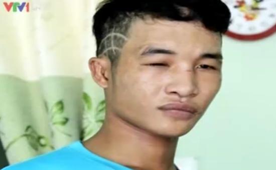 Hào Anh bị bắt vì trộm cắp tài sản