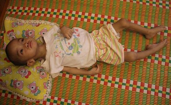 Mong manh sự sống của bé 2 tuổi 3 lần mổ não