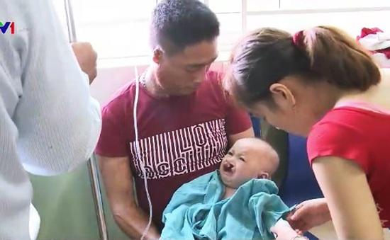 Phẫu thuật sứt môi hở vòm miễn phí cho trẻ em miền Trung