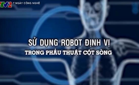Ứng dụng robot hỗ trợ phẫu thuật