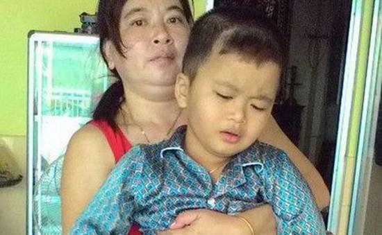 Bạc Liêu: Tặng chân giả cho em bé bị cắt một chân