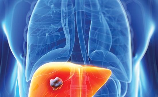 Phương pháp mới điều trị ung thư gan bằng hạt vi cầu phóng xạ
