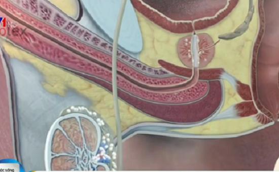 Viêm tuyến tiền liệt: Nguyên nhân và triệu chứng