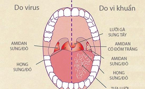 Kháng sinh không phải phao cứu sinh với bệnh viêm họng virus