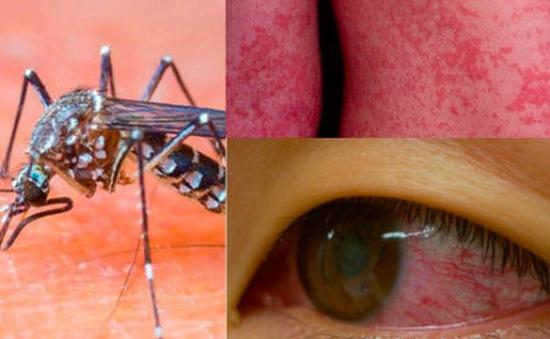 Đối phó virus Zika bằng bột giặt cải tiến và cá bảy màu