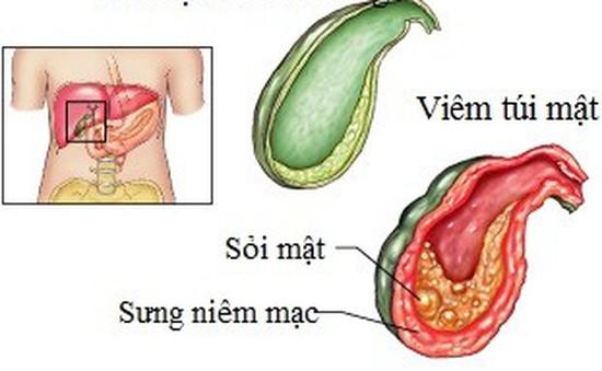 Đừng xem nhẹ bệnh viêm túi mật