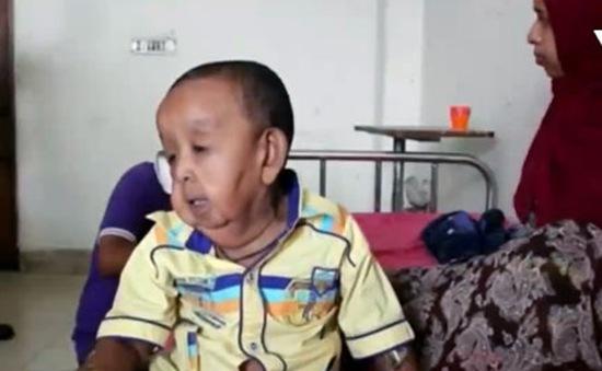 Bangladesh: Điều trị miễn phí cho em bé 4 tuổi như ông lão