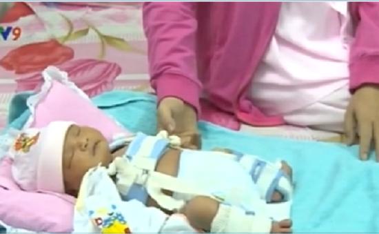 Sở Y tế An Giang đưa ra kết luận nguyên nhân trẻ sơ sinh bị gãy xương đùi