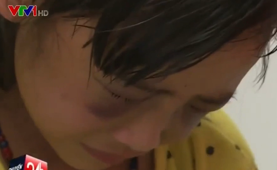 Bé gái lớp 1 bị cô giáo đánh tím mặt vì viết bài chậm